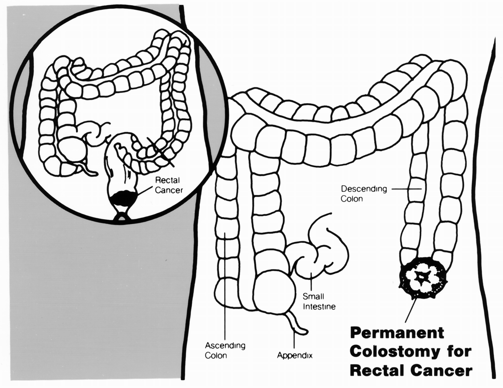 Colostomía permanente para un caso de cáncer de recto